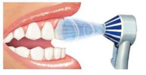 hydropulseur en action sur une dent